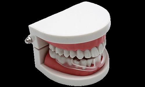 Dentabrux Knirschschiene Anwendung