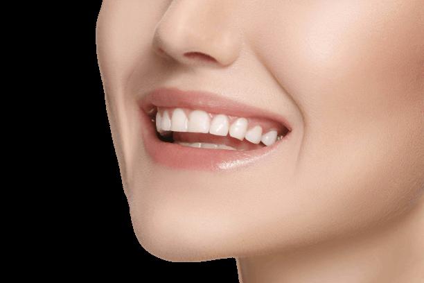 Zähne nach Dentabrux Knirschschiene